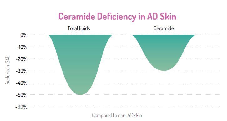 減少神經醯胺(Ceramide)使皮膚屏障的功能失效
