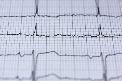 心臟檢查 – ECG 靜態心電圖