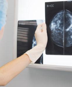 乳房超聲波檢查 mammogram x-ray